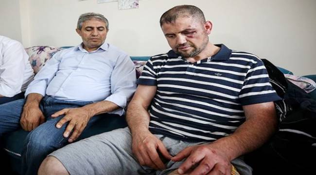 Gaziyi Kafede Darbeden 3 Kişi Tutuklandı