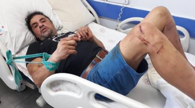 Manisa'da Trafik Kazası Geçiren Hastayı Eli ve Ayaklarından Yatağa Bağladılar